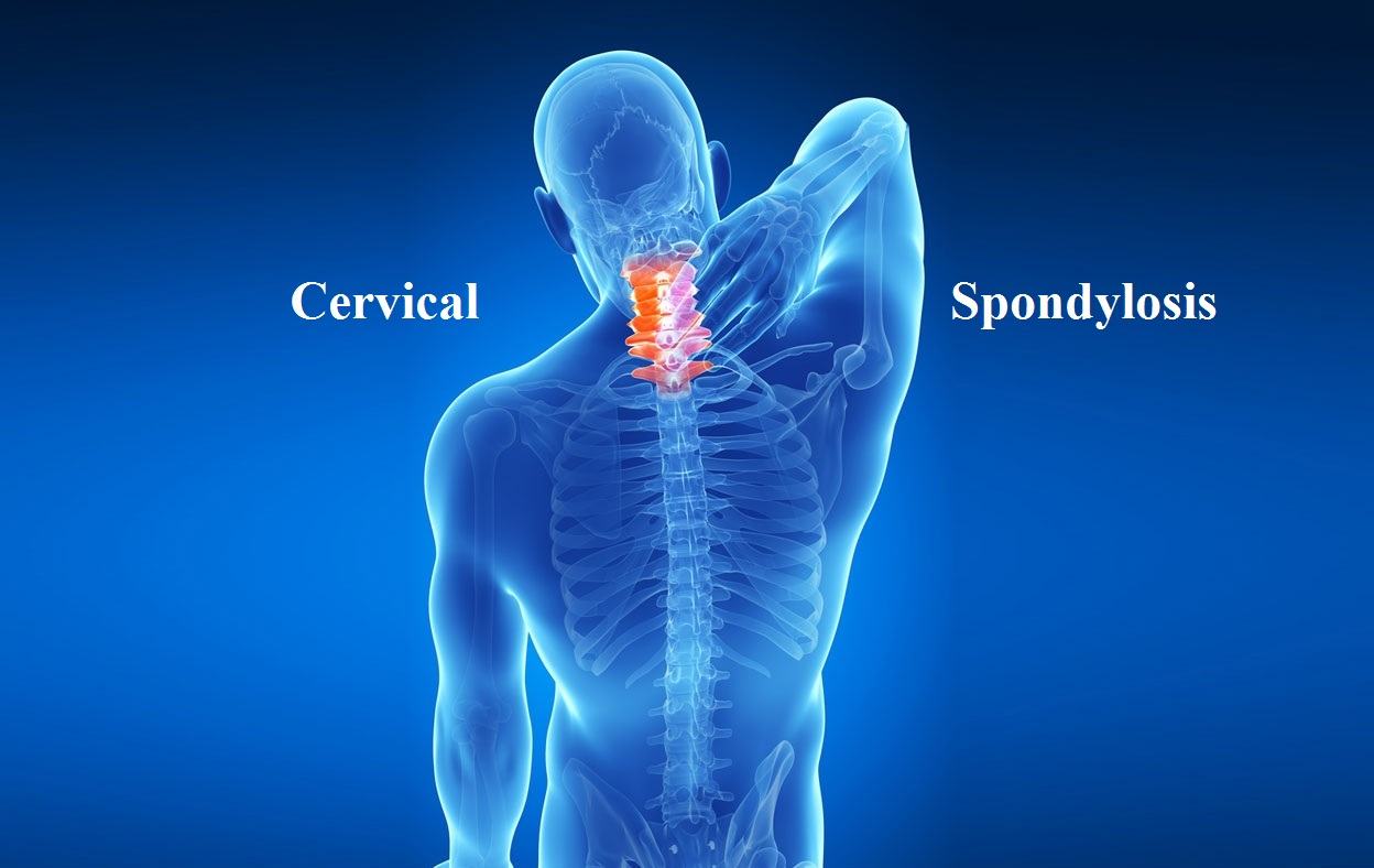 cervical spondylosis causes incidence and risk Cervical spondylosis is a form of arthritis that affects the neckit is caused by degeneration of the cervical spine or the bones in the neck it is more common in elderly people.
